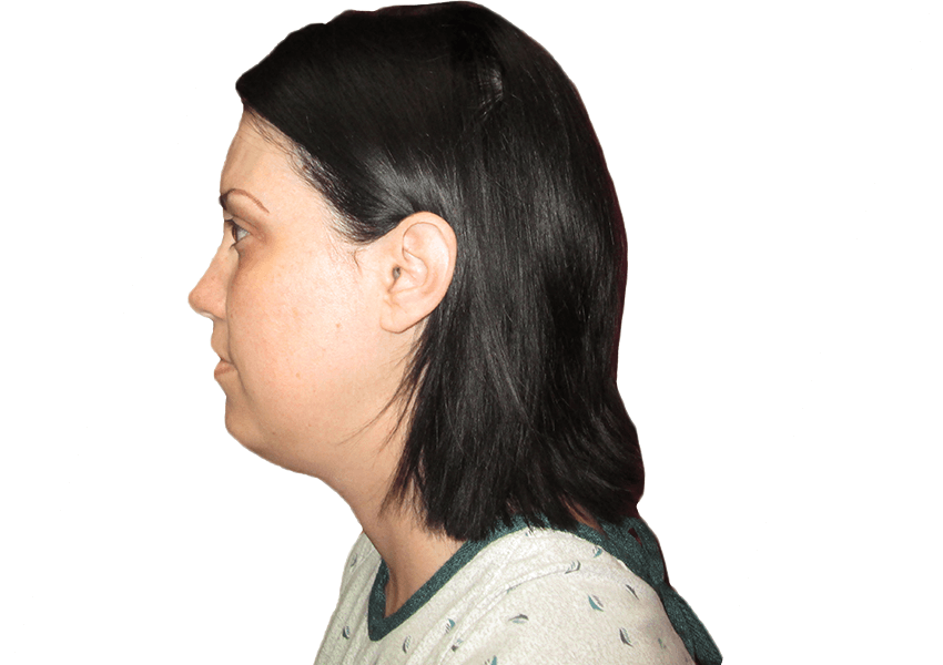 Neck Lift Before and After | Premiere Surgical Arts Houston, Texas