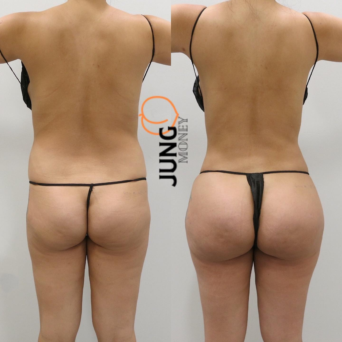 Fat transfer to buttocks recovery