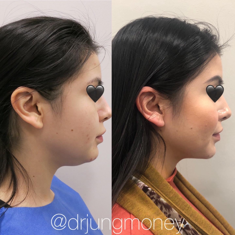 eye lift surgery cost houston tx