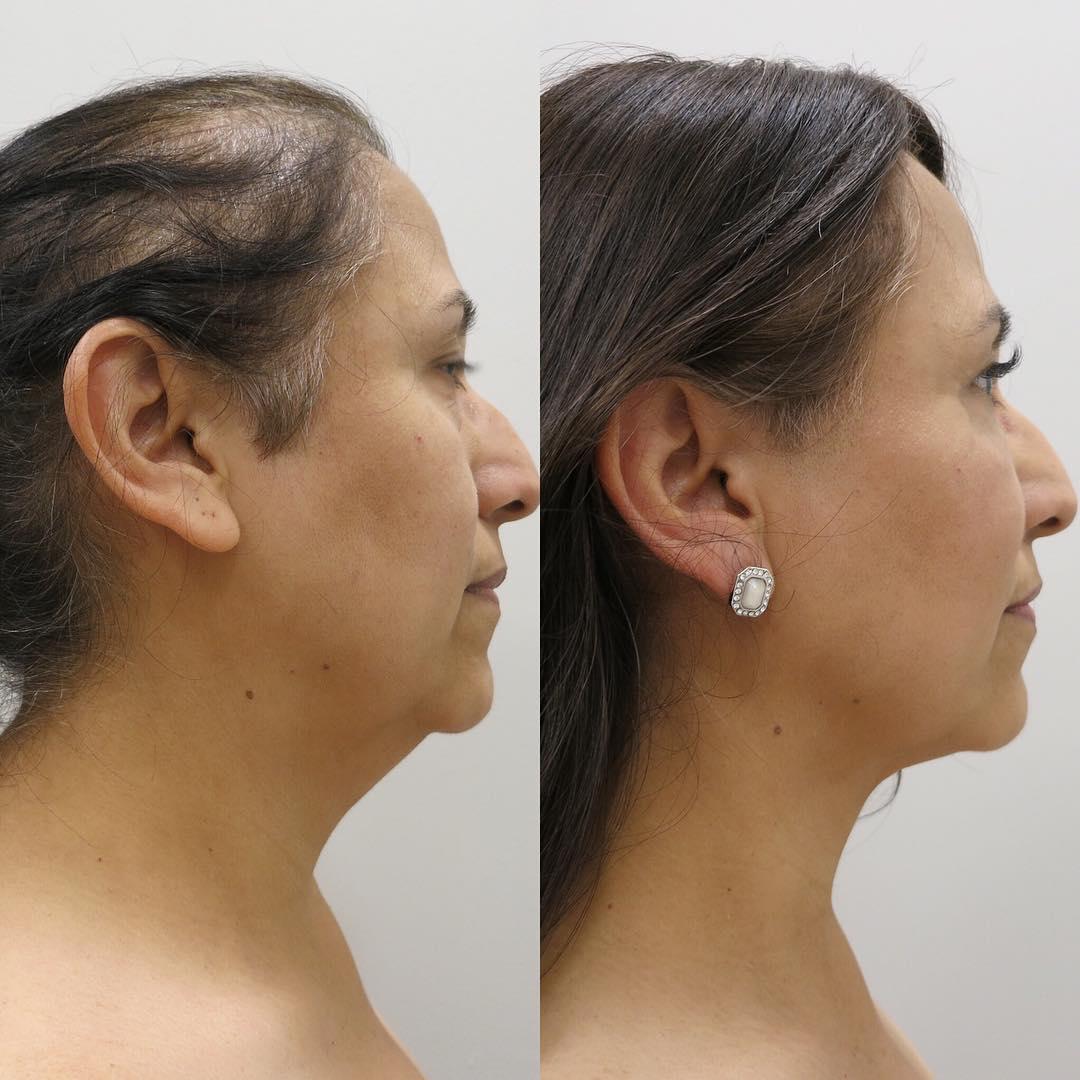 neck liposuction cost houston