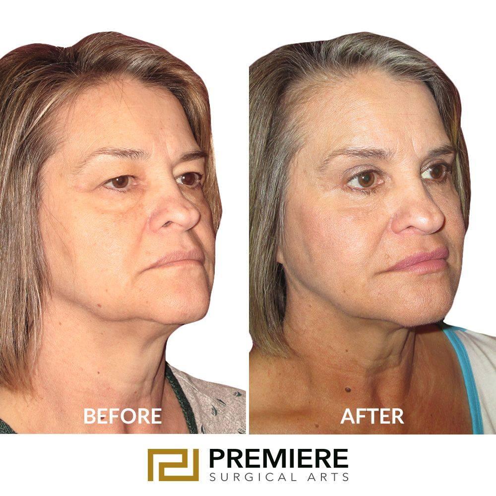 best procedure for neck tightening 2021